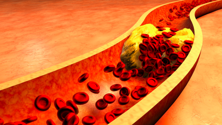 yuksek-kolesterol